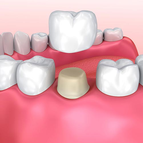 dental crown placement